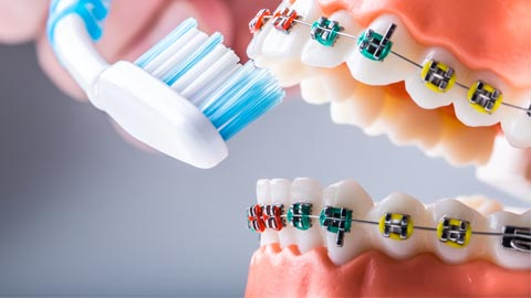 Controversies in Orthodontics — Fact vs Fiction thumbnail